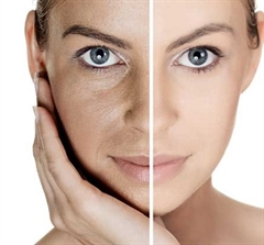 Laser skin resurfacing treatment (half face)